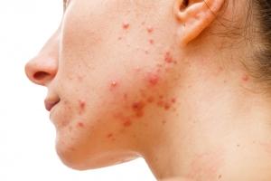 Vitamine care te ajuta sa mentii pielea sanatoasa si sa scapi de acnee